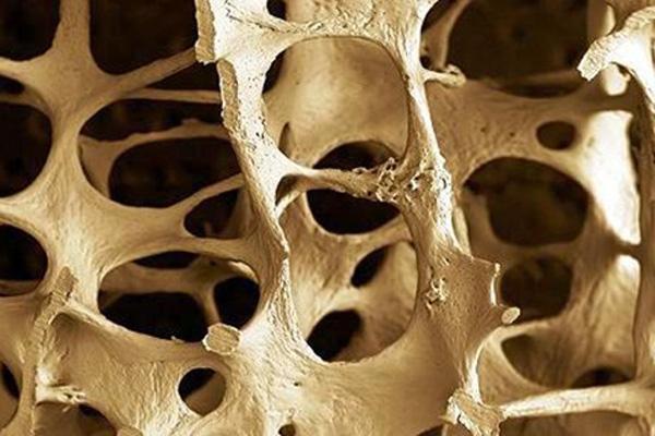 Osteoperosis (Credit: German Tenorio / Flickr)