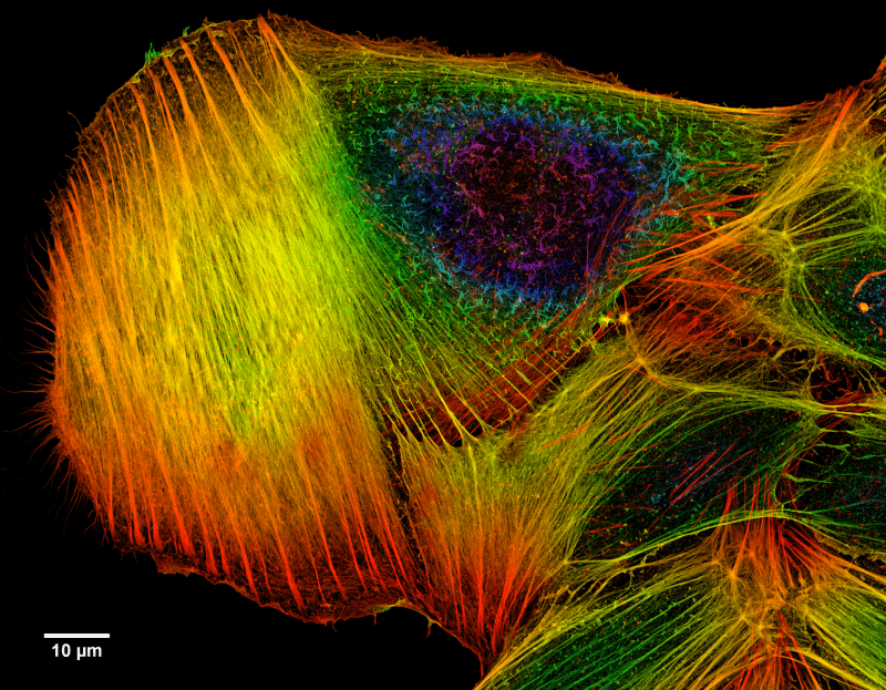 Actin filaments in a cultured bone cancer cell, colour-coded for depth. (Wikipedia)