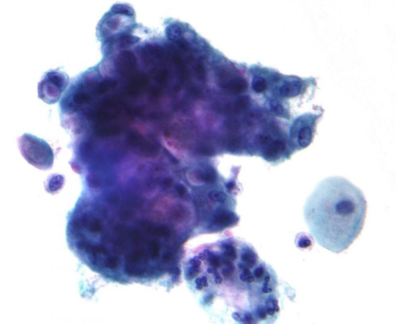 Micrograph showing cells with prominent mucin. (Credit: Wikipedia)