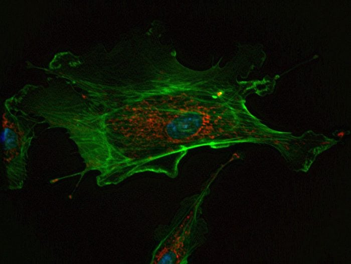 An endothelial cell, an example of a eukaryotic cell. Photo: IP69.226.103.13 via Wikimedia Commons, CC 3.0