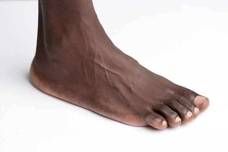 Foot Diagram  Labeled Anatomy