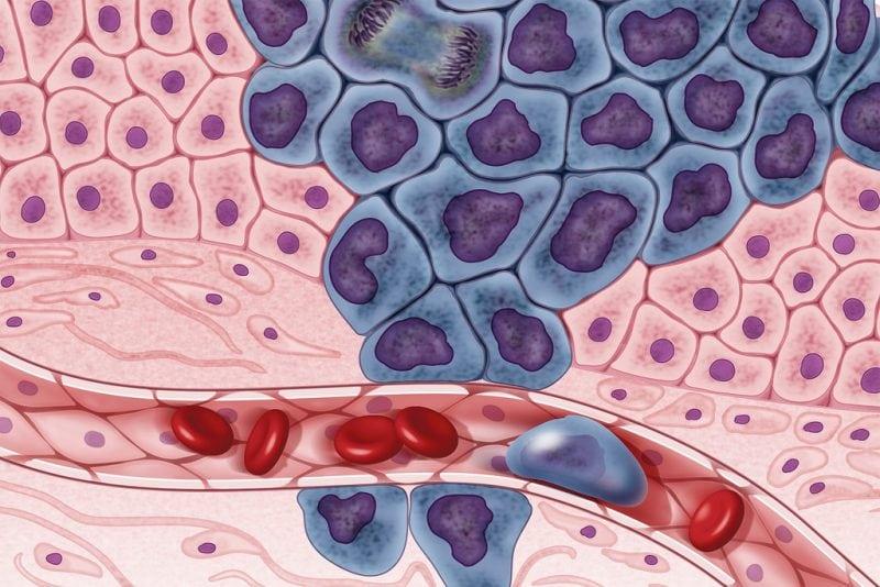 """Cancer cells illustration"" by the NIH Image Gallery via Flickr is licensed under CC0"