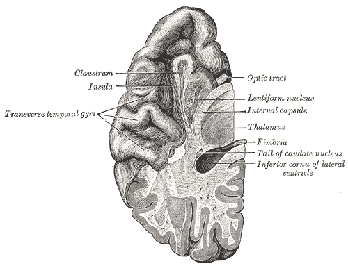 Upper surface of the temporal lobe. Photo: Public Domain