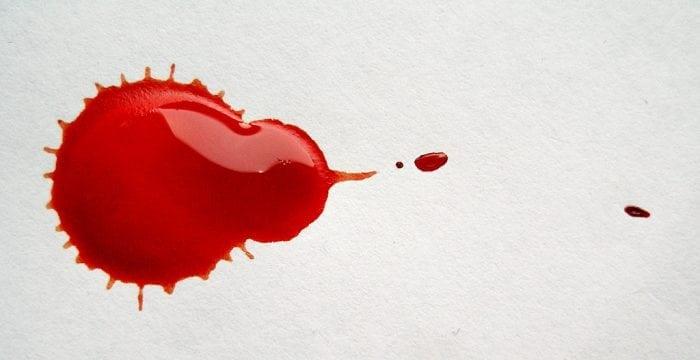 """Blood"" by Mate Marschalko (via Flickr) is licensed under CC BY 2.0"