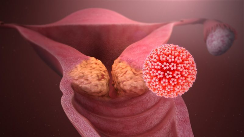 Cervical cancer is caused by HPV infections. Photo: By Manu5 - http://www.scientificanimations.com/wiki-images/, CC BY-SA 4.0, https://commons.wikimedia.org/w/index.php?curid=65969733