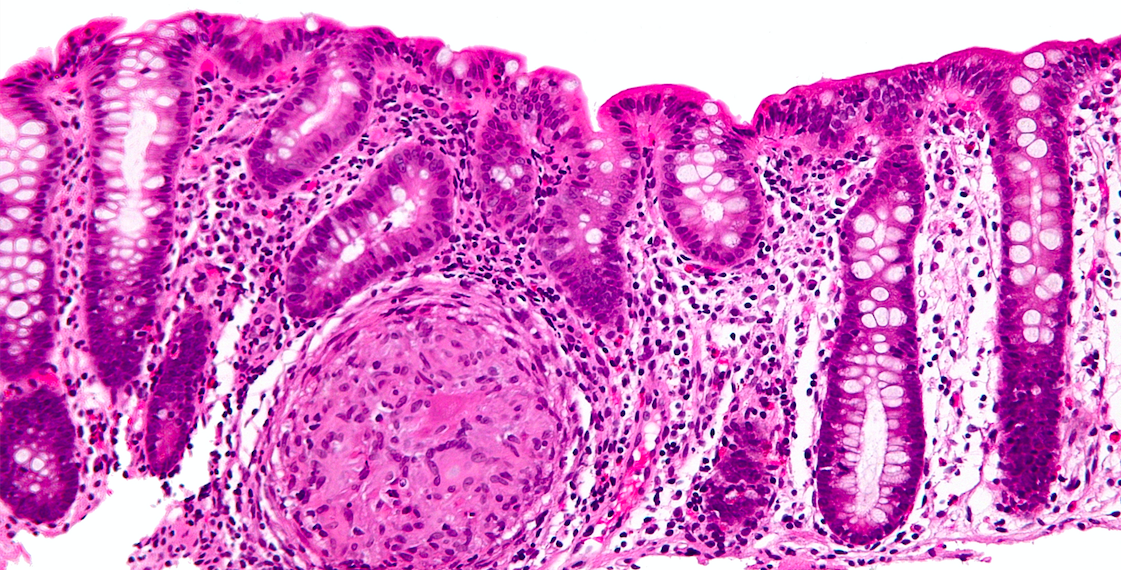 Caron's Disease. Credit: Wikimedia Commons