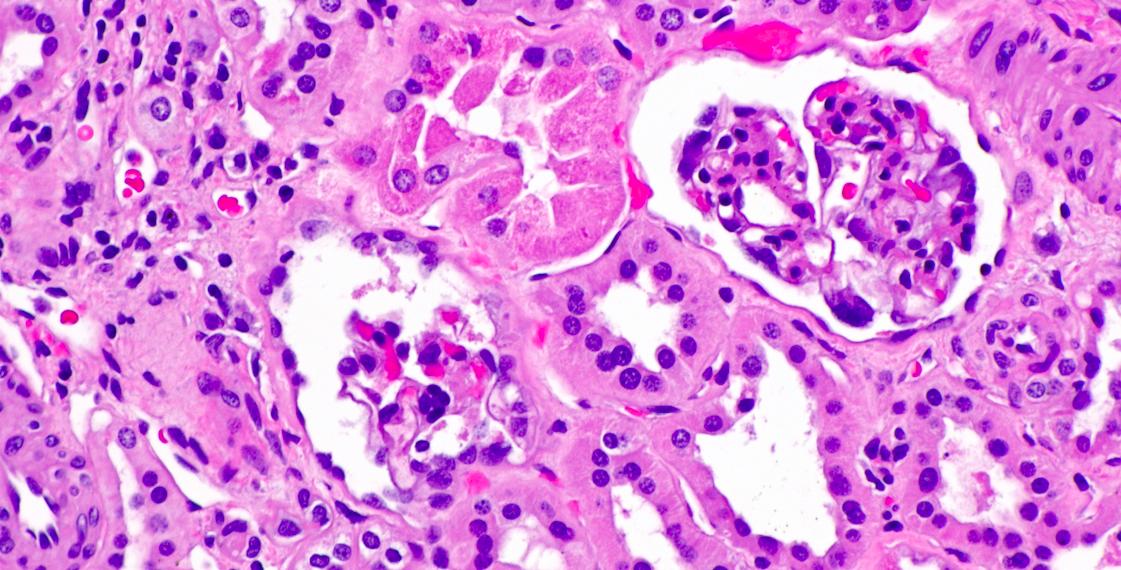 Kidney cystinosis. Credit: Wikimedia Commons