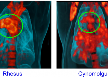 Fig 1. A PET CT scan of the lung area of rhesus and cynomolgus macaques infected with Mtb. Rhesus macaques have a more severe lymph node disease compared to cynomolgus macaques. The green circle indicates lymph nodes. Red, orange and yellow areas indicate inflammation. Image republished with permission from PLOS from https://doi.org/10.1371/journal.ppat.1007337.