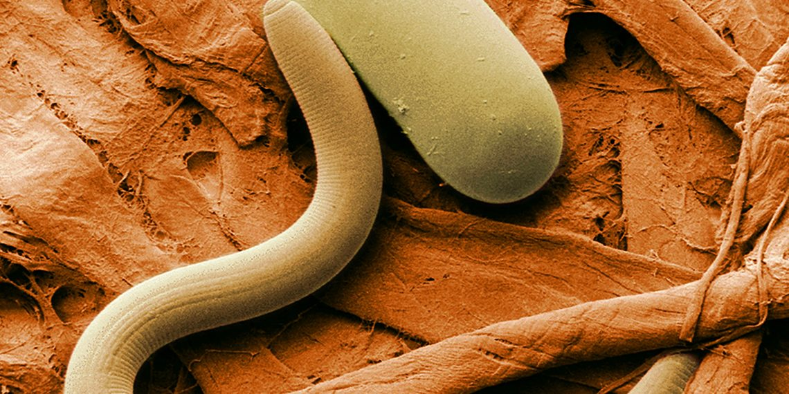 """""""Colorized electron micrograph of soybean cyst nematode (Heterodera sp.) and egg"""" by the USDA via Wikipedia, is licensed under CC0"""