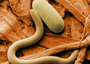 """Colorized electron micrograph of soybean cyst nematode (Heterodera sp.) and egg"" by the USDA via Wikipedia, is licensed under CC0"