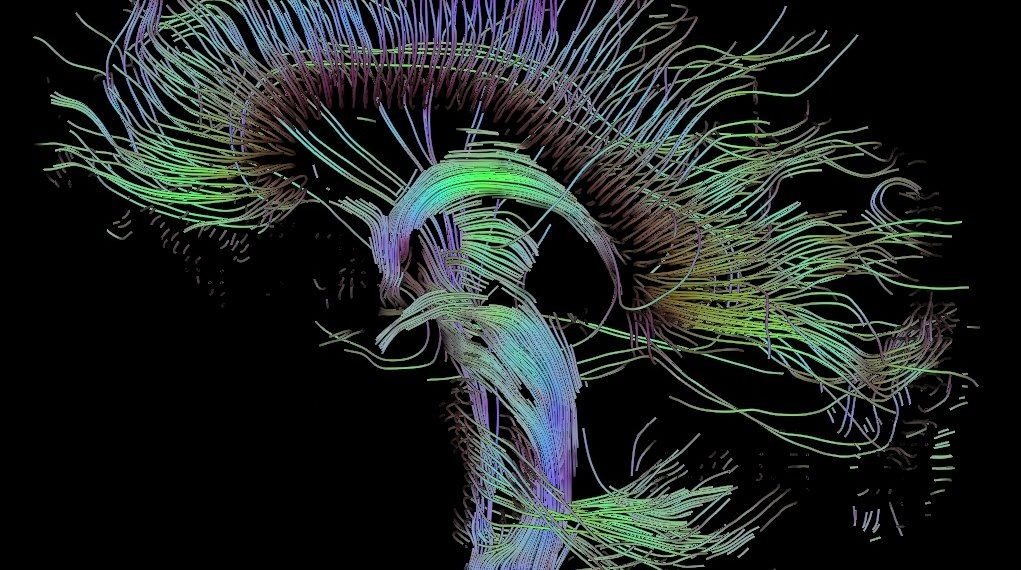 """""""Tractographic reconstruction of neural connections via DTI"""" (https://en.wikipedia.org/wiki/Diffusion_MRI#/media/File:DTI-sagittal-fibers.jpg) by Thomas Schultz via Wikipedia is licensed under CC-BY-SA 3.0 http://creativecommons.org/licenses/by-sa/3.0/"""